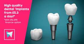 High quality dental implants from £5.3 a day!