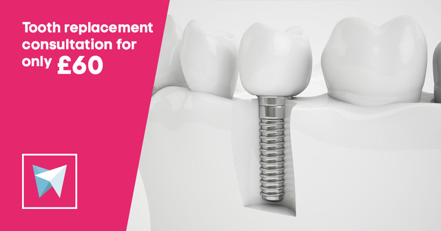 tooth replacement offer