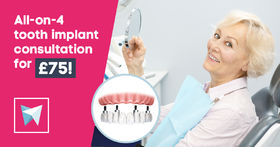 All-on-4 tooth implant consultation for £75!