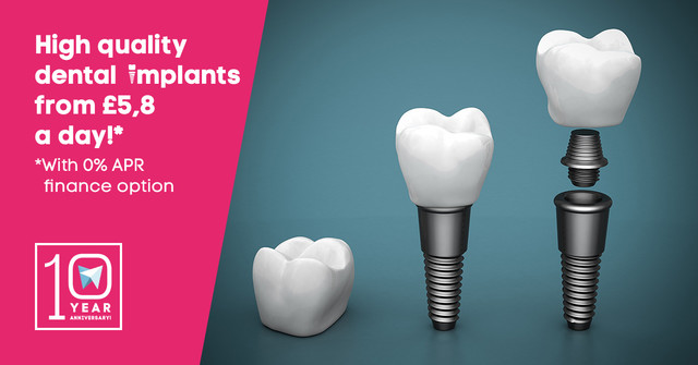 High quality dental implants from £5,8 a day!