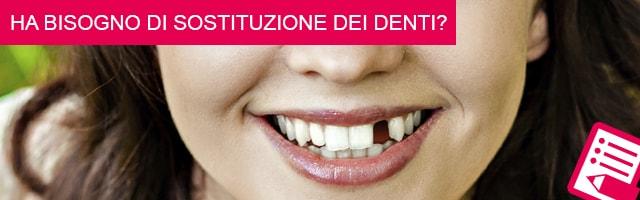 Ha bisogno di sostituzione dei denti?