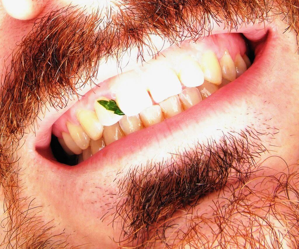 Come eliminare il tartaro dai denti del tuo cane | Animali ...